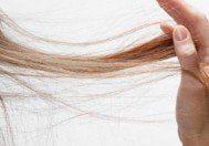 Kadınlar Saçı Niçin Dökülür?